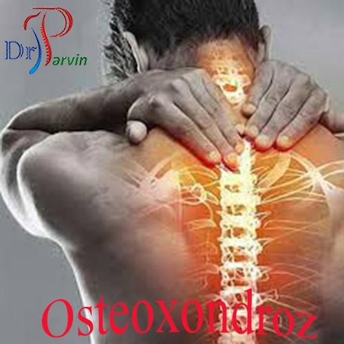 Osteoxondroz adlı xəstəlik yoxdu